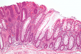 colorectal cancer micrograph
